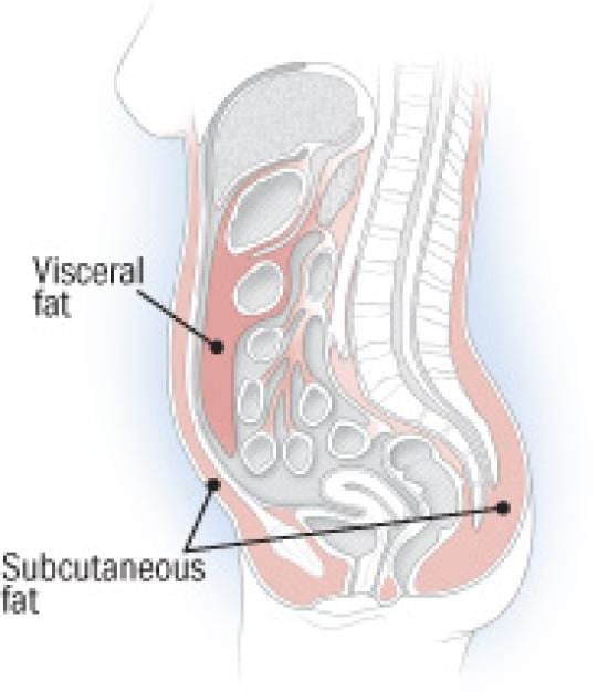 Visceral vs. subcutaneous fat