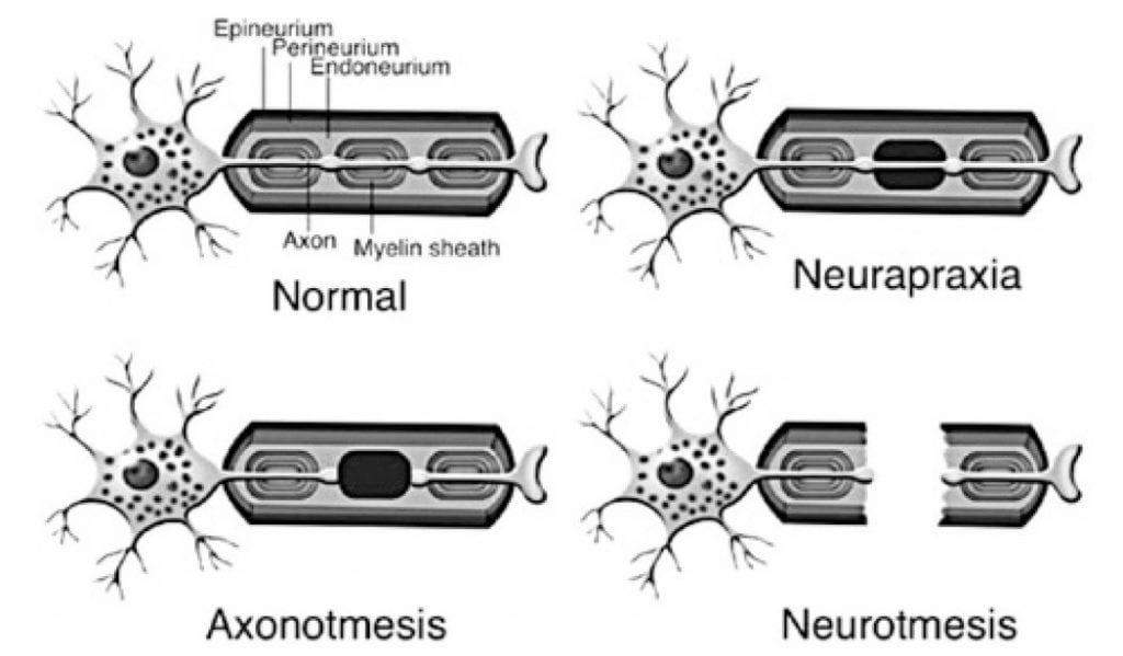 Nerve fiber injury